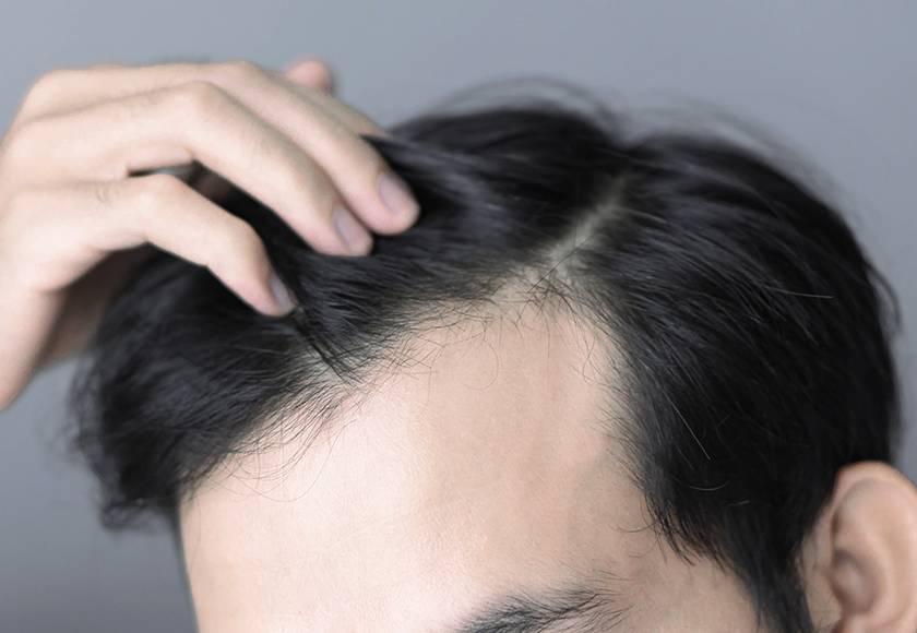 生え際を気にする男性の頭部