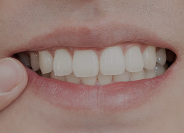 Dクリニック新宿歯のホワイトニングイメージ