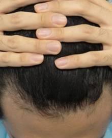 Dクリニック新宿で治療を受けた20代 M型の男性の頭部アフターイメージ