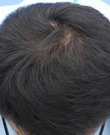 Dクリニック新宿で治療を受けた30代 O型の男性の頭部アフターイメージ