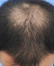 Dクリニック新宿で治療を受けた30代 O型の男性の頭部ビフォーイメージ