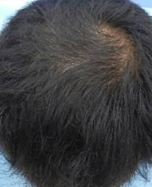 Dクリニック新宿で治療を受けた40代 MO型の男性の頭部アフターイメージ
