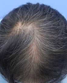 Dクリニック新宿で治療を受けた50代 MO型の男性の頭部アフターイメージ