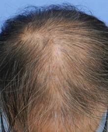 Dクリニック新宿で治療を受けた50代 MO型の男性の頭部ビフォーイメージ